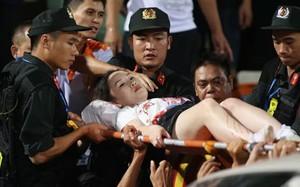 Fan nữ trúng pháo sáng CĐV Nam Định: Bỏng hoá chất nguy hiểm thế nào?