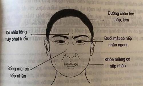 Tướng đàn ông có ngấn ở sống mũi
