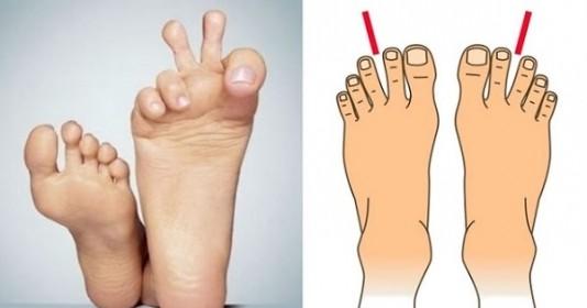 Nhìn bàn chân biết ngay hậu vận, 4 kiểu cho thấy chủ nhân giàu sang