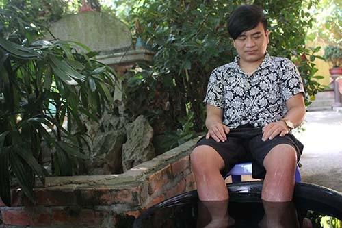 Chang trai 19 nam co doi chan nong nhu than gio ra sao?-Hinh-2