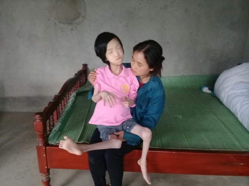 Phu Tho: Xot thuong chau be ngheo bi da di tat chan tay co quap-Hinh-2