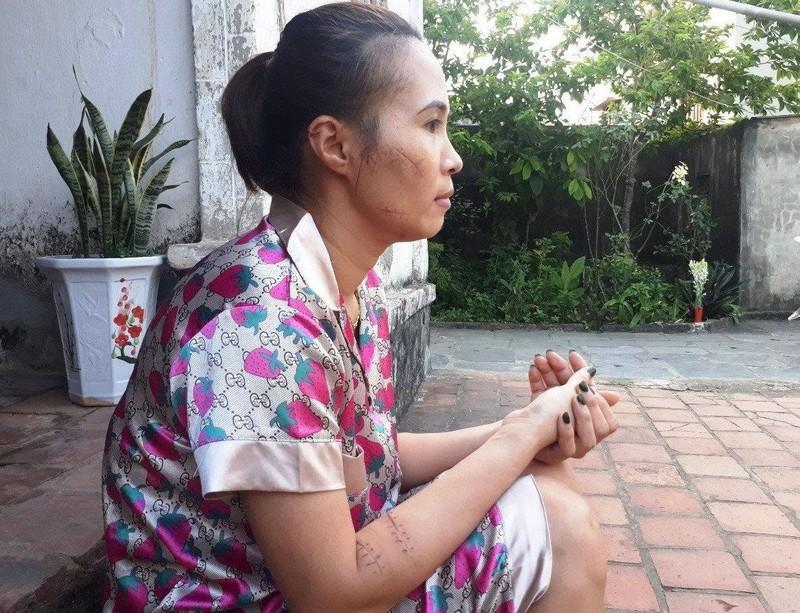 Khoi to vu chong xong vao xuong may dam vo-Hinh-2