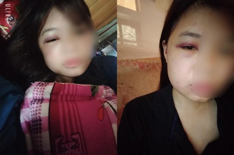 Nu sinh lien tuc danh ban, quay clip gay xon xao du luan tai Quang Binh