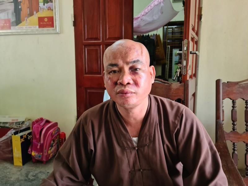 Su chua Thien Mu o Hai Phong bi hai nguoi danh vo xuong mui