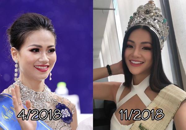 4 hoa hau phau thuat tham my: Phuong Khanh sua 9 bo phan-Hinh-3