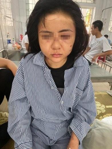 Ket qua giam dinh thuong tich co gai o Yen Bai bi danh suot 2 tieng-Hinh-2