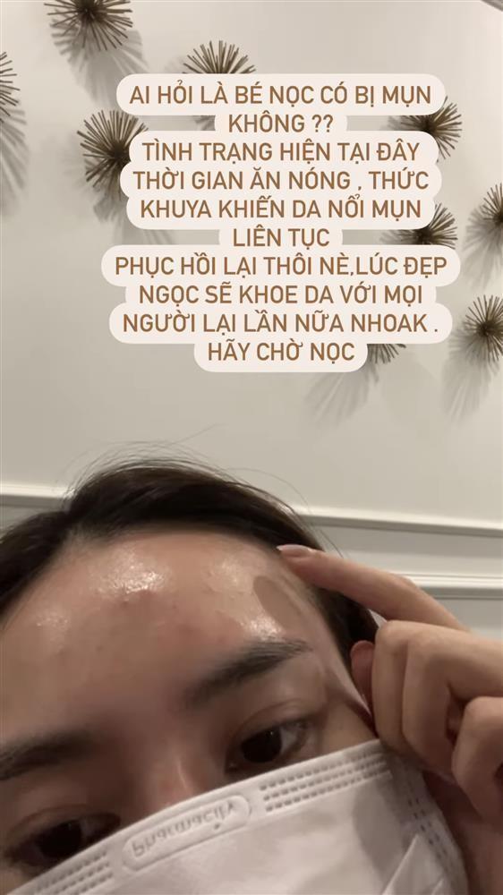 Lan Ngoc lo mat nhu com chay hau tin don chia tay Chi Dan