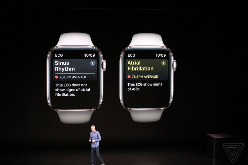Apple Watch Series 4 co dang de ban