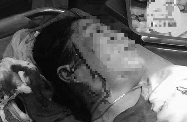 Binh Thuan: Hen danh ghen, mot phu nu bi dam rach mat
