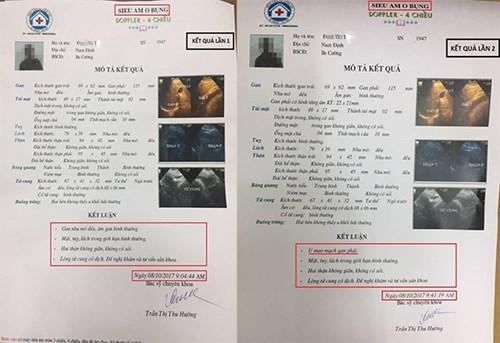 """Lum xum o BVDK 16A Ha Dong:  Khi giam doc benh vien mac benh """"hon nhien""""-Hinh-2"""