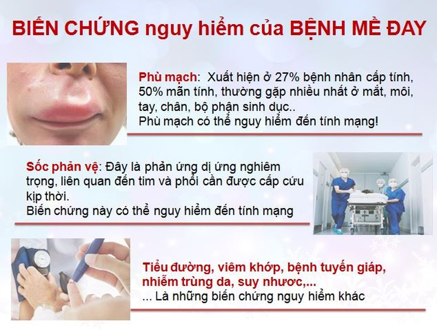 "Bai thuoc Nam cua nguoi Viet ""danh bay"" me day man ngua trong tich tac-Hinh-2"