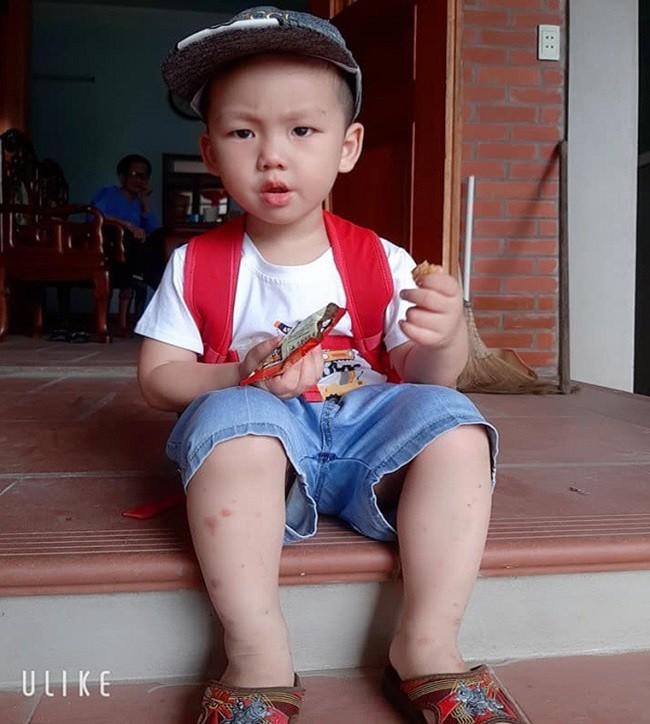Em be so sinh chao doi voi can nang ky luc 7,1kg, gio ra sao?-Hinh-5