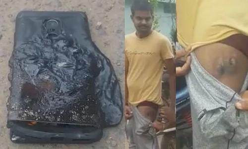 """Smartphone """"nhai"""" Galaxy Note 7 bat ngo phat no trong tui nguoi dung"""