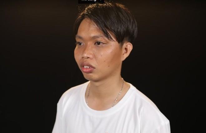Phau thuat guong mat 2 lan vi bi goi la 'Duc Phuc phien ban loi'