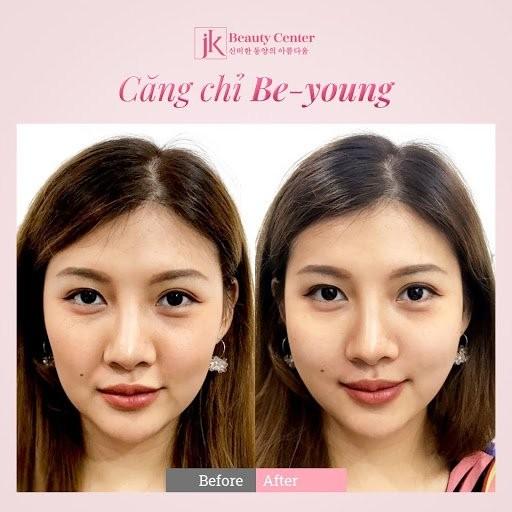 Cong nghe cang chi Be-Young duoc phu nu Viet san don-Hinh-2