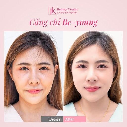 Cong nghe cang chi Be-Young duoc phu nu Viet san don