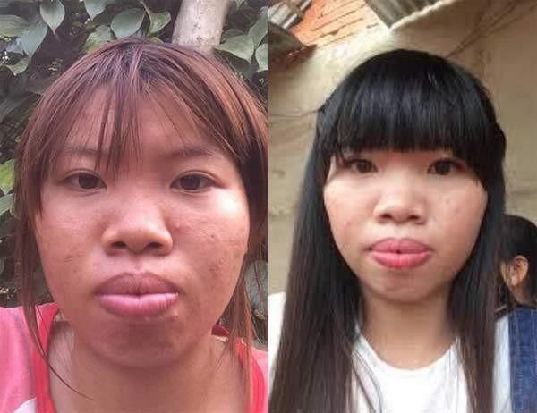 Thi No Quach Phuong khoe anh tai hon
