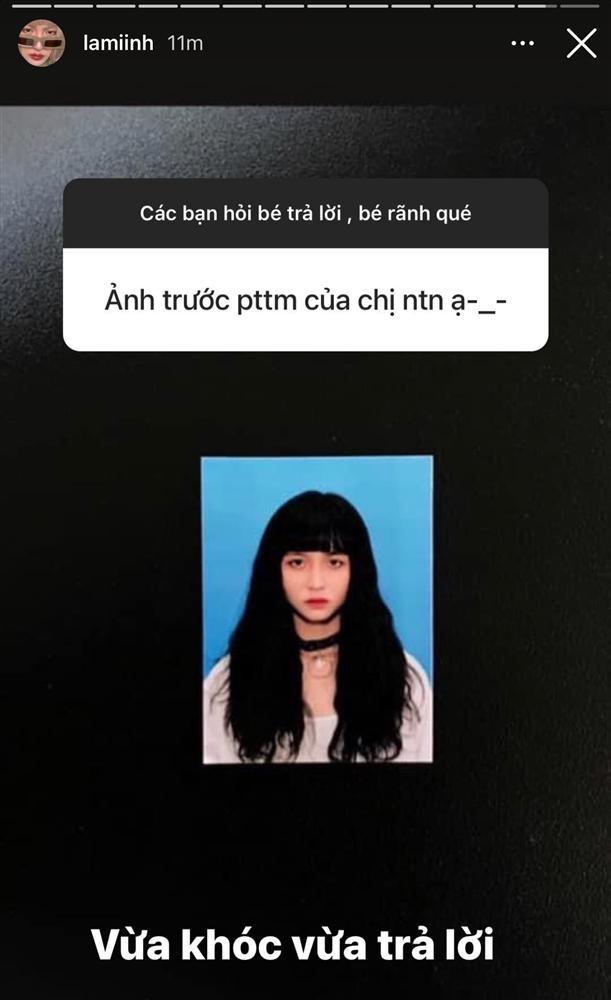 Ban gai tin don Decao cong khai phau thuat tham my-Hinh-4