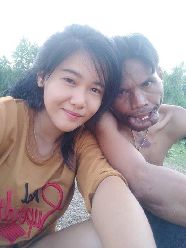 Cuoc song hien tai cua cap dua lech Thai Lan ra sao?