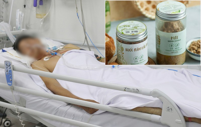 Ngo doc pate Minh Chay: Bao nhieu nguoi mua san pham?