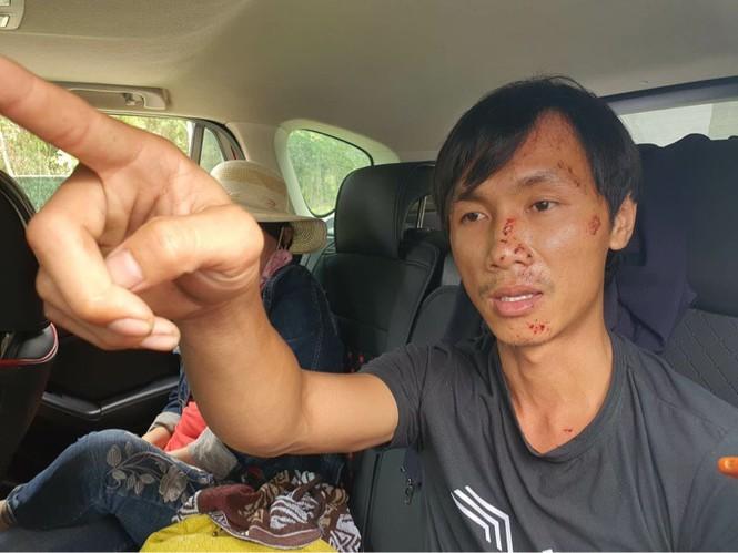 """Xe 16 cho dam xe tai, 8 nguoi chet: Tai xe ke phut """"dau dau"""" kinh hoang"""