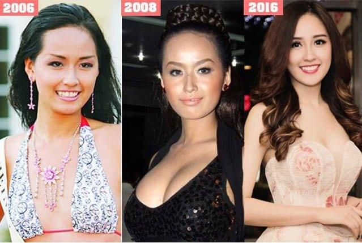 4 hoa hau phau thuat tham my: Phuong Khanh sua 9 bo phan-Hinh-5