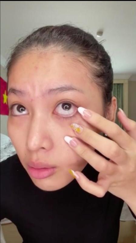 Ngoc Thao lo moi tham, da day mun sau lop make up vi dieu-Hinh-7