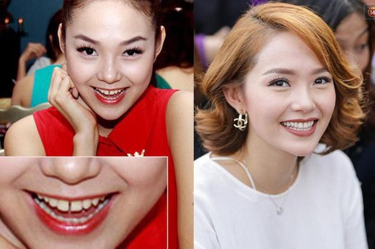 "Minh Hang bi ""khui"" clip thoi den dua, rang thua 15 nam truoc-Hinh-14"