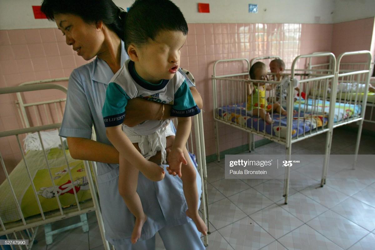 Khoanh khac an tuong ve y te Viet Nam qua ong kinh quoc te-Hinh-4
