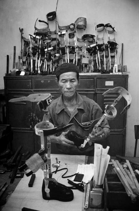Anh quy ve nguoi thuong binh Viet Nam nam 1980-Hinh-10