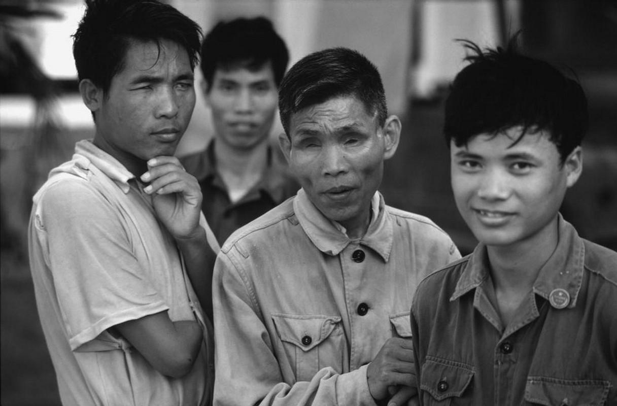 Anh quy ve nguoi thuong binh Viet Nam nam 1980-Hinh-4