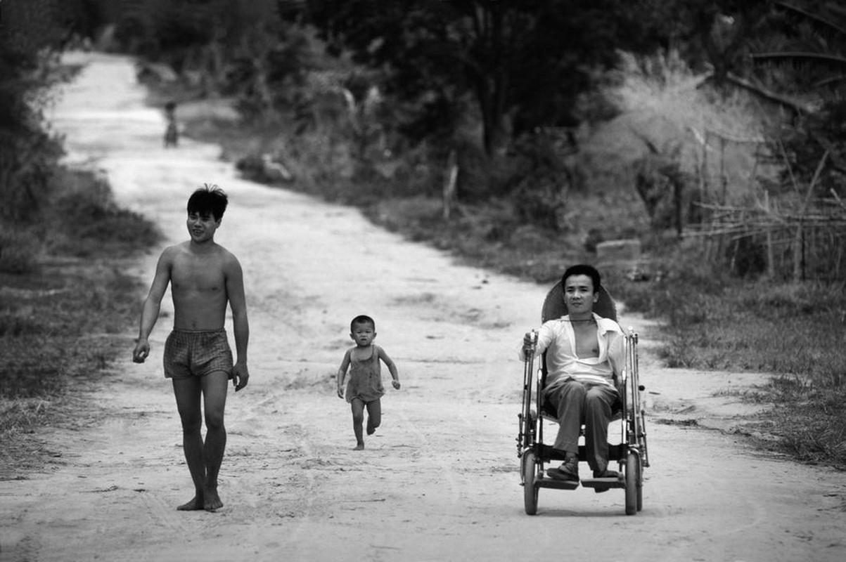 Anh quy ve nguoi thuong binh Viet Nam nam 1980-Hinh-5