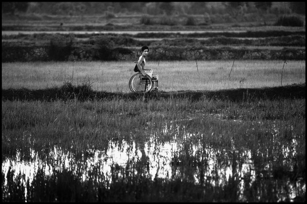 Anh quy ve nguoi thuong binh Viet Nam nam 1980-Hinh-9