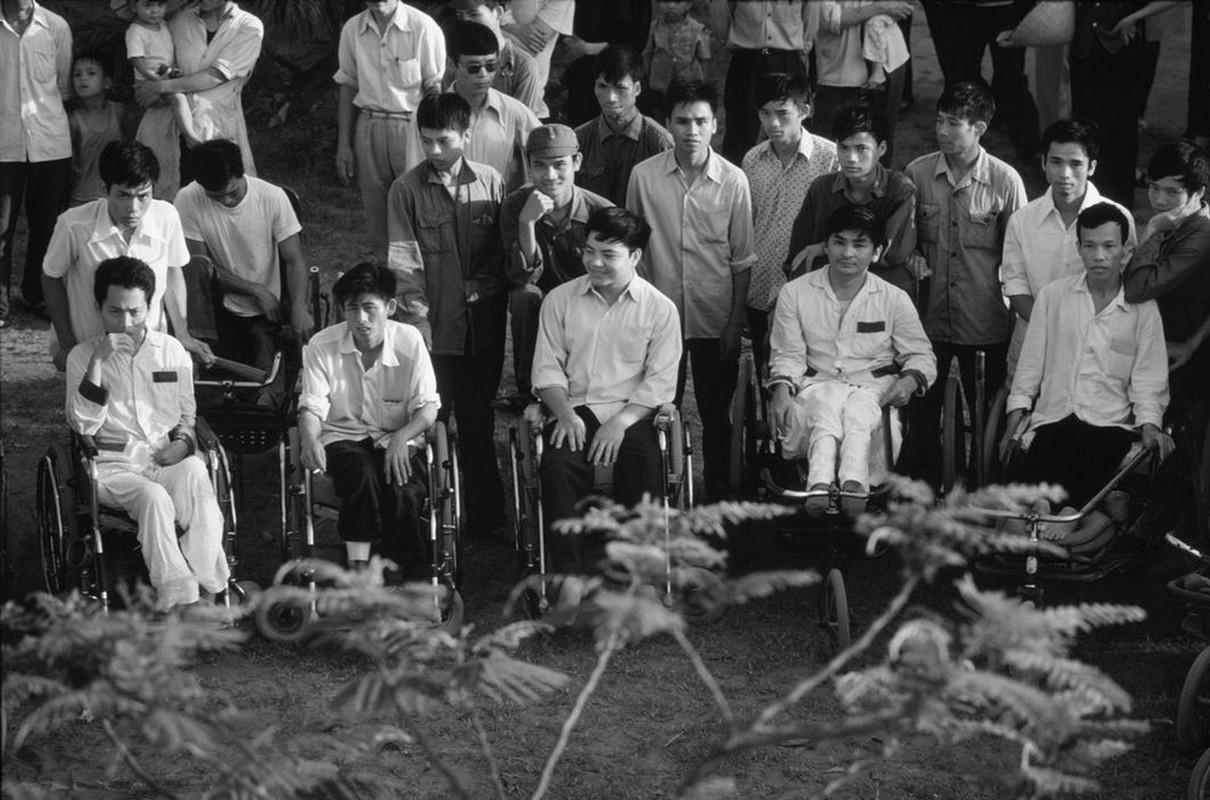 Anh quy ve nguoi thuong binh Viet Nam nam 1980