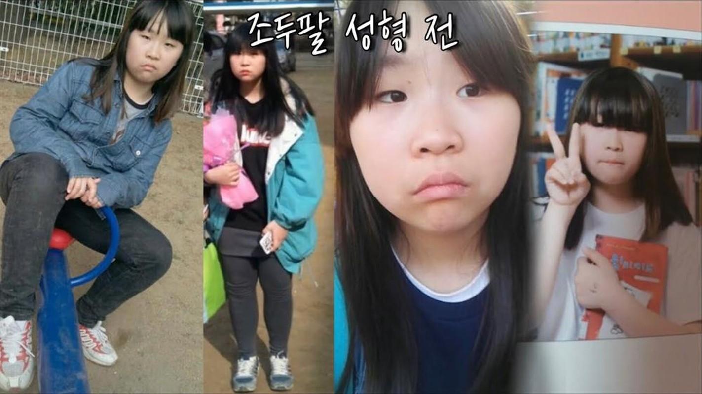 Nhan sac hot girl Han Quoc phau thuat tham my toan co the-Hinh-2