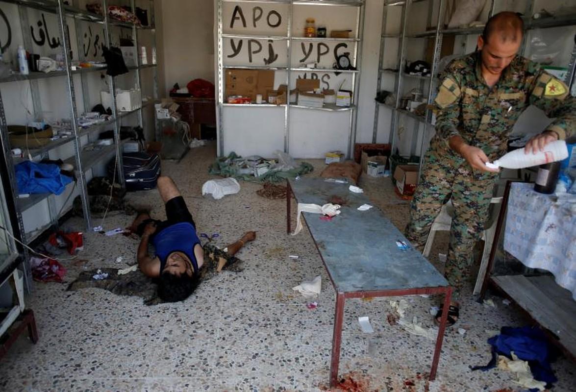 Canh kinh hai ben trong benh vien da chien o Raqqa-Hinh-4