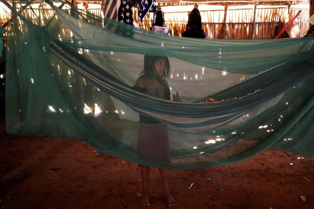 Khon kho cuoc song bo lac Amazon vi chay rung du doi-Hinh-13