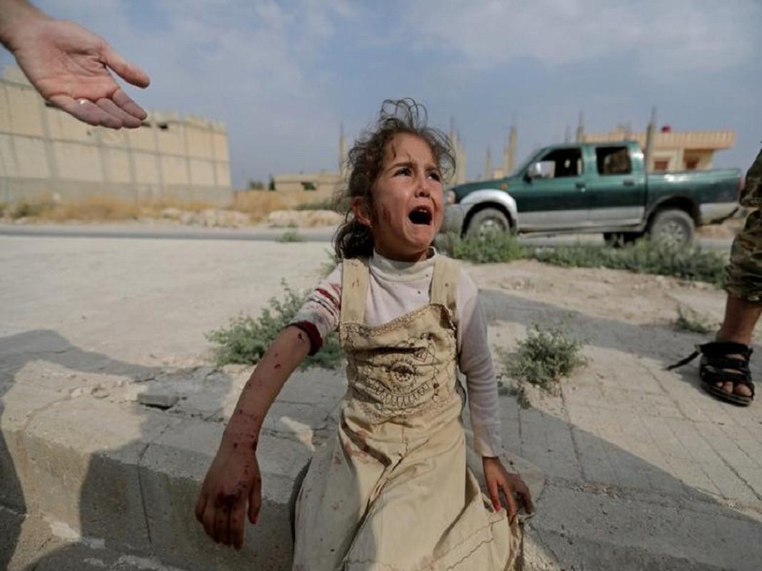 Cuoc song nguoi Kurd chay loan o Syria, ai thay cung xot xa-Hinh-9