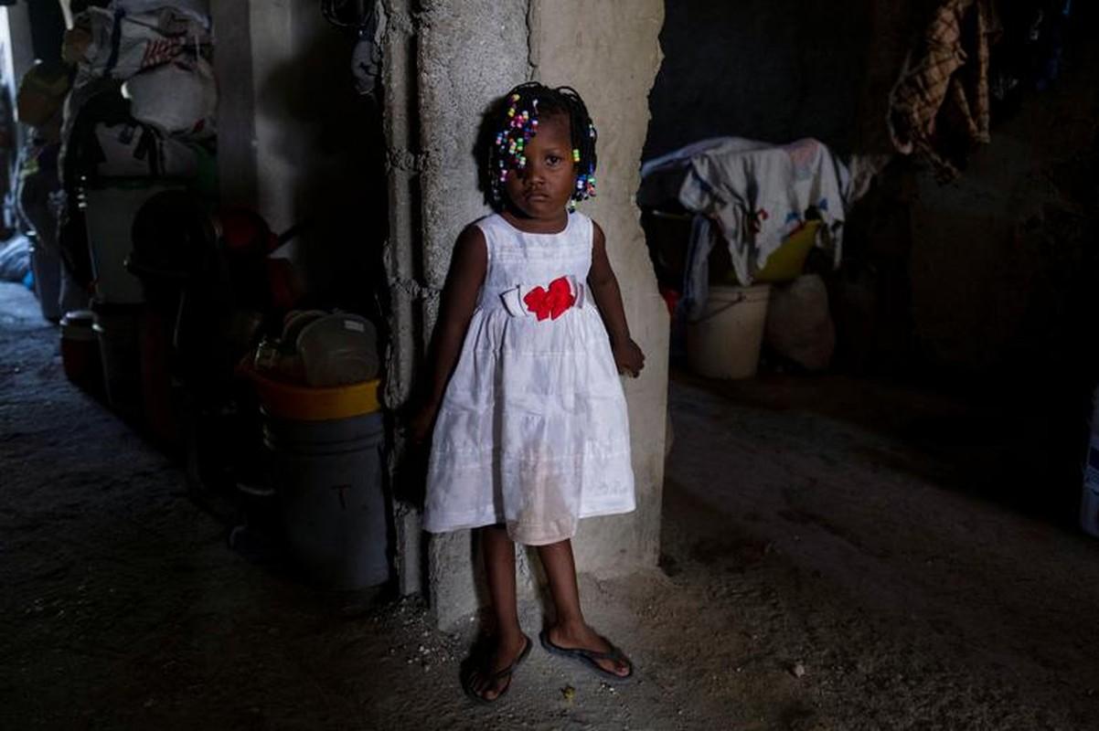 Cam canh cuoc song nguoi dan Haiti trong noi tru an tam bo-Hinh-2