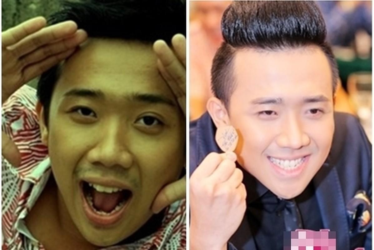 """Tran Thanh va Hari Won thay doi ngoai hinh """"chong mat""""-Hinh-7"""