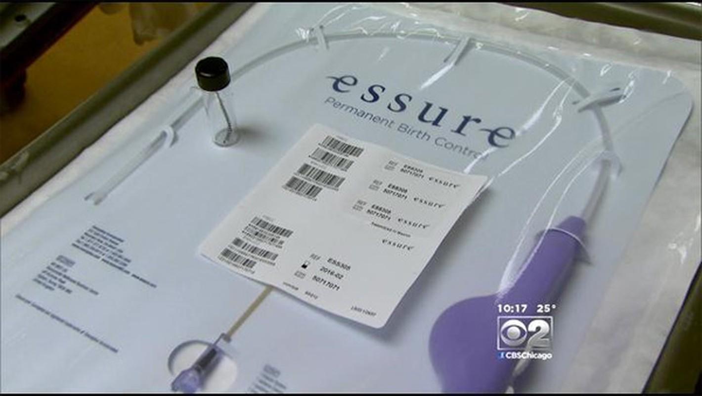 Kinh hãi hàng loạt phu nu thủng tủ cung vi lo xo tranh thai-Hinh-7