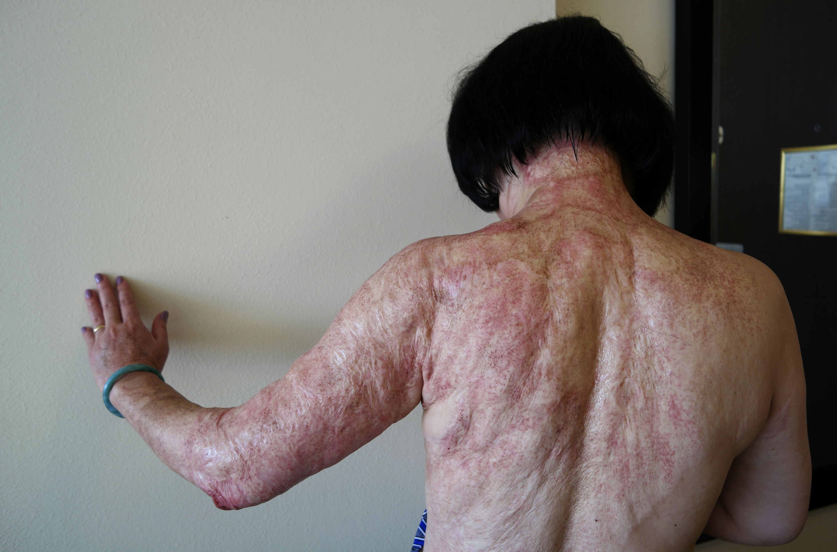 Chi tiét quy trình trị sẹo bỏng bàng laser cho em be Napalm-Hinh-2