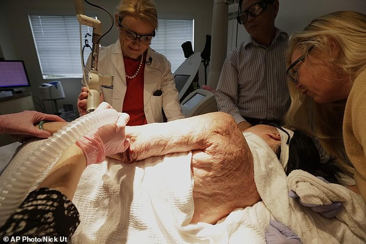 Chi tiét quy trình trị sẹo bỏng bàng laser cho em be Napalm-Hinh-8