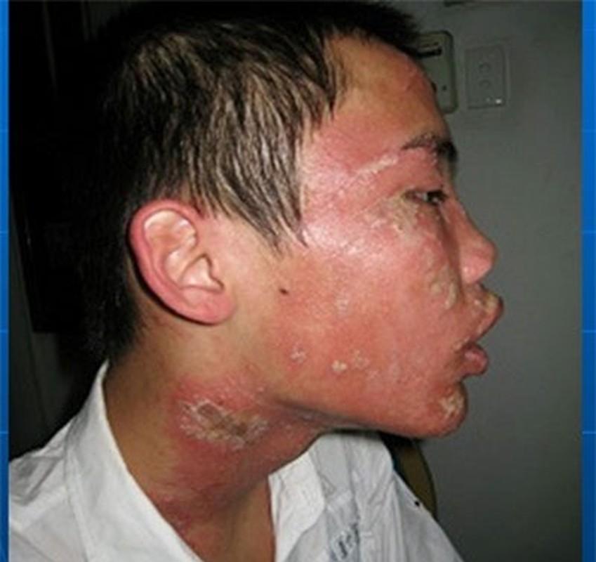 Cach chua vet kien ba khoang dot khong de lai bien chung-Hinh-7