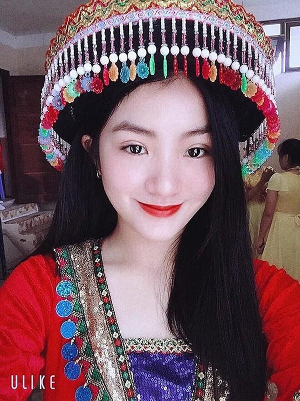 Nu sinh tang hoa ong Kim Jong Un dip thuong dinh My-Trieu la ai?-Hinh-4