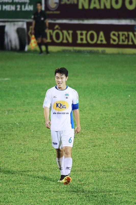 U23 Viet Nam: Thuong Chau nam ay nguoi chan thuong ke ngap phot tinh ai-Hinh-2