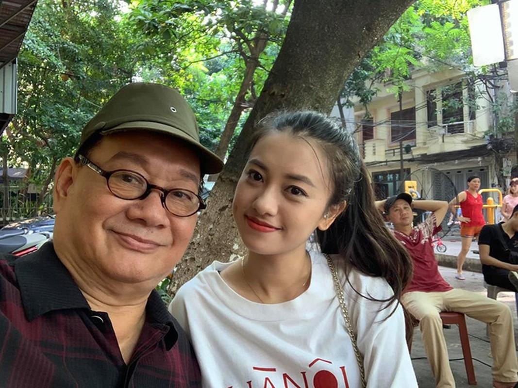 """Bi dan mang """"dao mo"""" kho anh, """"Chi ong vang"""" gay bat ngo boi nhan sac-Hinh-2"""
