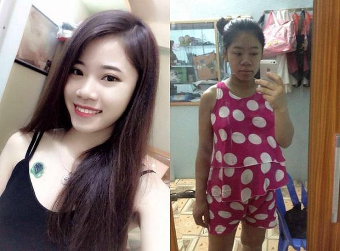 Truoc va sau khi sinh con hoi chi em bien hinh trong dang thuong-Hinh-3