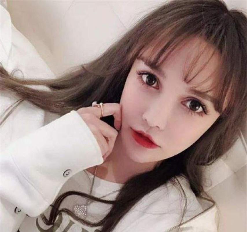 Bi me ep di phau thuat tham my tu, hot girl Trung Quoc co dong thai la-Hinh-2