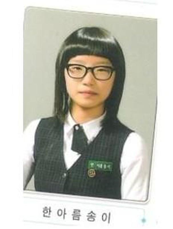 Hot girl Han Quoc lo anh chua phau thuat tham my khien dan mang khiep dam-Hinh-3